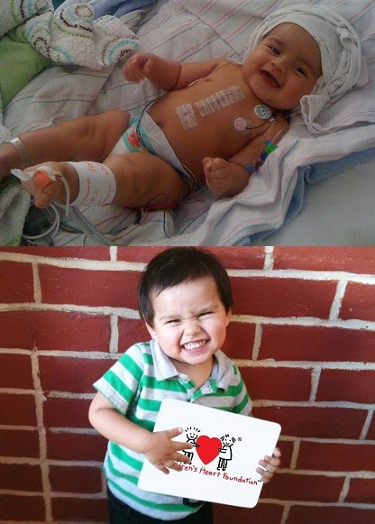 Meet Gael, a child impacted by The Children Heart's Foundation research